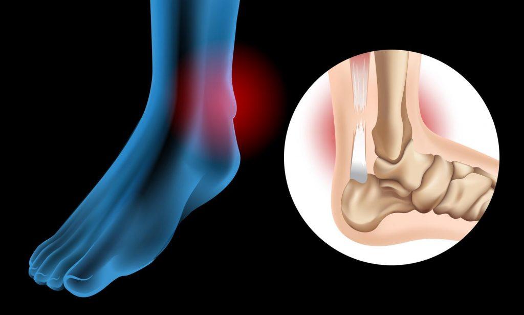 Diagram Showing Chronic Achilles Tendon Tear Vector