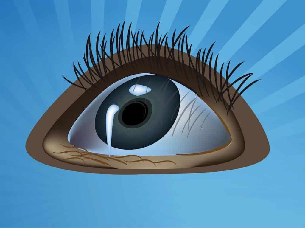 Staring-Eye